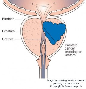 diagram showing prostate cancer pressing on the urethra